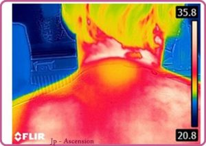 Wärmebildkameraaufnahme nach einer LichtEnergiearbeit